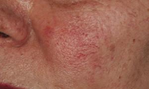Roodheid huid Couperose
