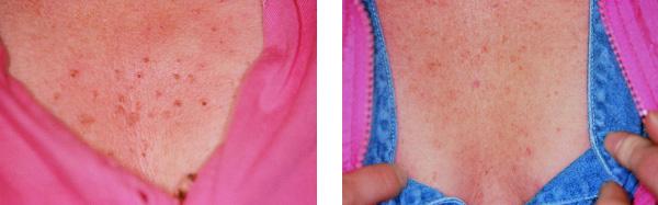fibromen-voor-na-3-600px